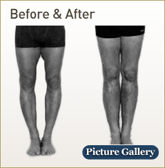 Limb Lengthening before and after photos
